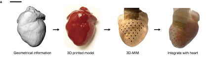 Heart_device_Figure_1a